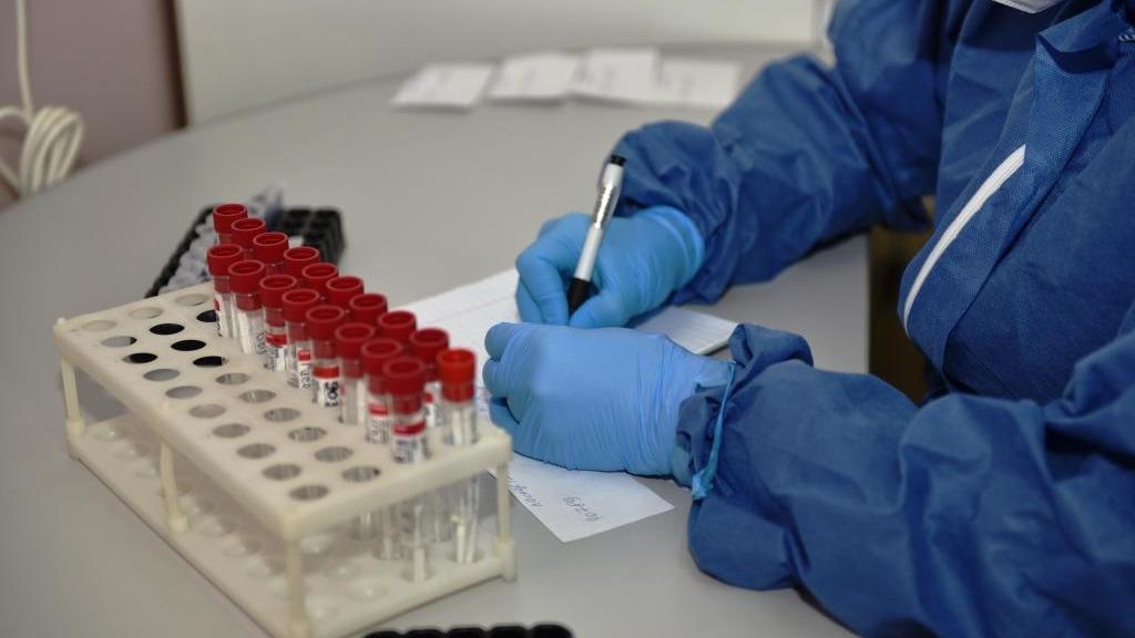 5 вопросов о коронавирусе